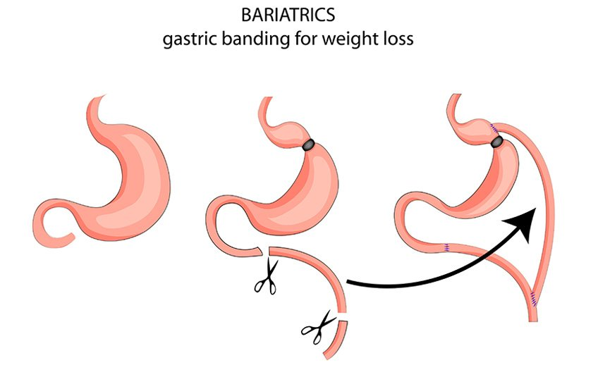 adjustable gastric banding diagram