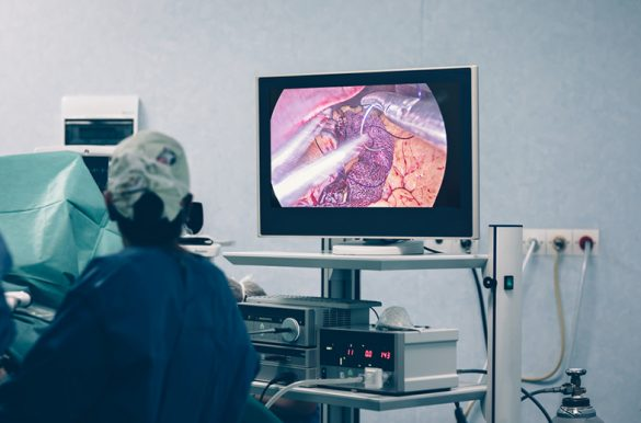 bariatric surgery being performed with an endoscopic device