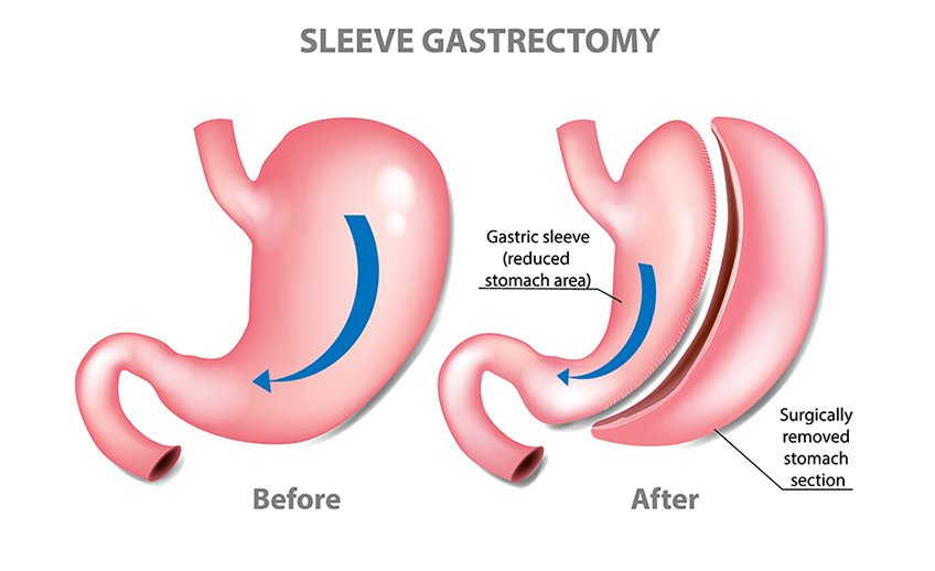 sleeve gastrectromy diagram